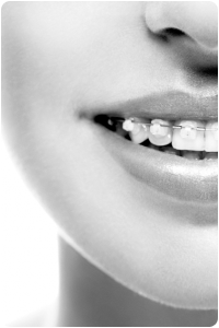 damon clear braces in palatine barrington il